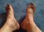 Това представляваха краката ми след два дена вървене със сандали и без къпане