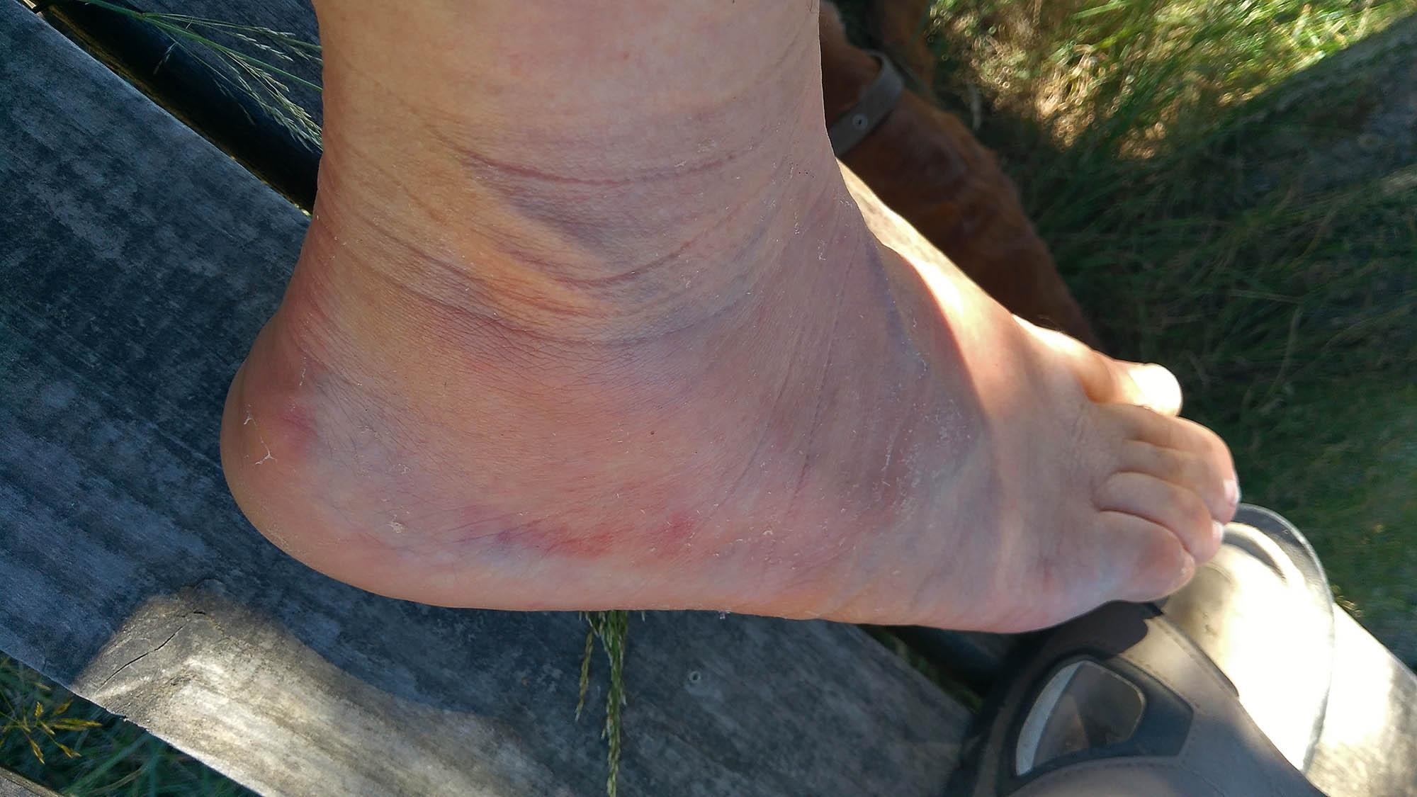 Болния крак